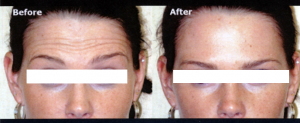 frown lines-before -after