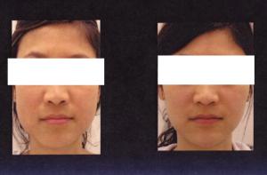 sharper-face-botox-2