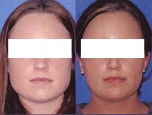 sharper-face-botox