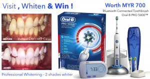 VIsit-whiten-win-dentist3