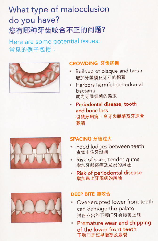 type-malocclusion