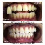 diastema-closure-19-7-17
