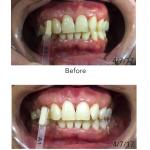 professional-teethwhitening-model