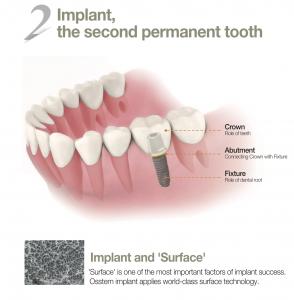 dental-tooth-implant-malaysia-2