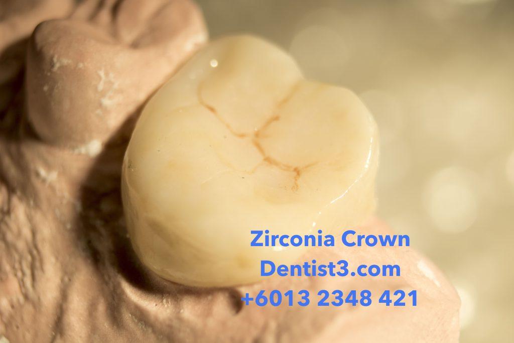Zirconia Crown & Bridge Malaysia