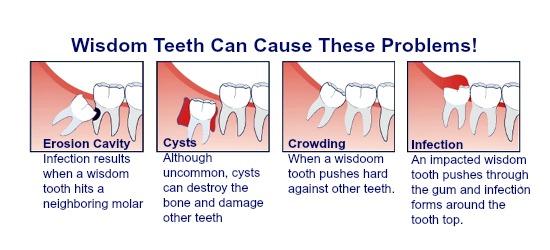 dentist3clinic-wisdomteethremoval