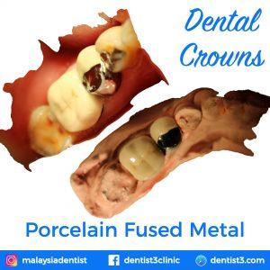 porcelain-fused-metal-crowns