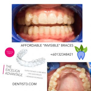 DENTIST3-SALLY-INVISIBLE-BRACES