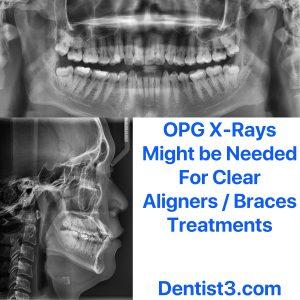 dentist3-invisible-braces