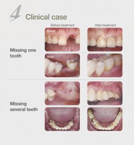 dental-implant-malaysia-4