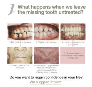 dental-tooth-implant-malaysia-1