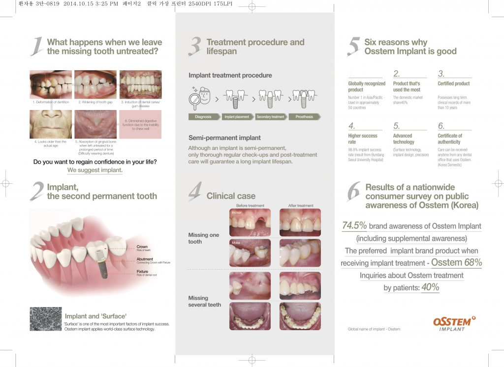 dental-tooth-implant-malaysia-2