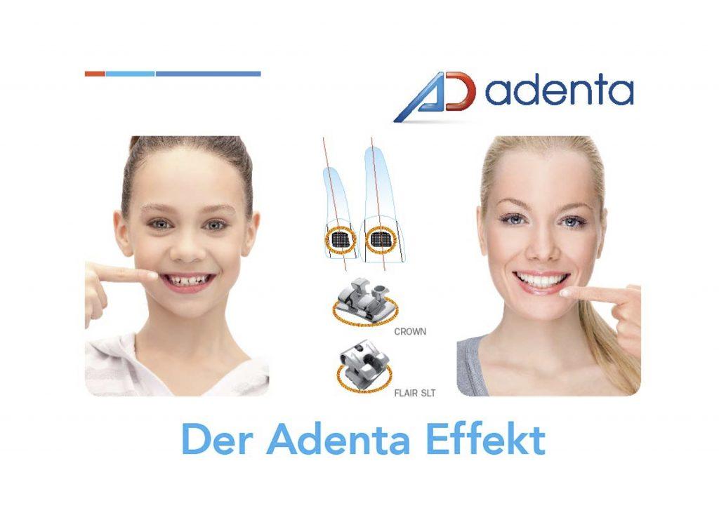 Adenta CROWN Bracket Placement System