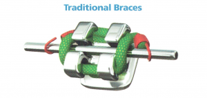 Conventional-braces-dentist-malaysia