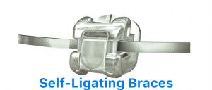 SElf-ligating-braces-dentist-malaysia