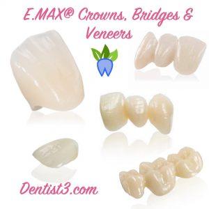 emax-crowns-bridges