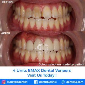 emax-patient-2019