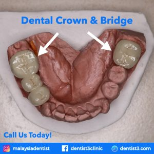 crown-Bridge-dentist3