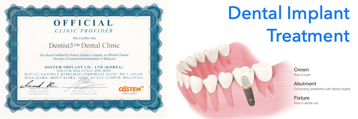 dental-implant-dentist3