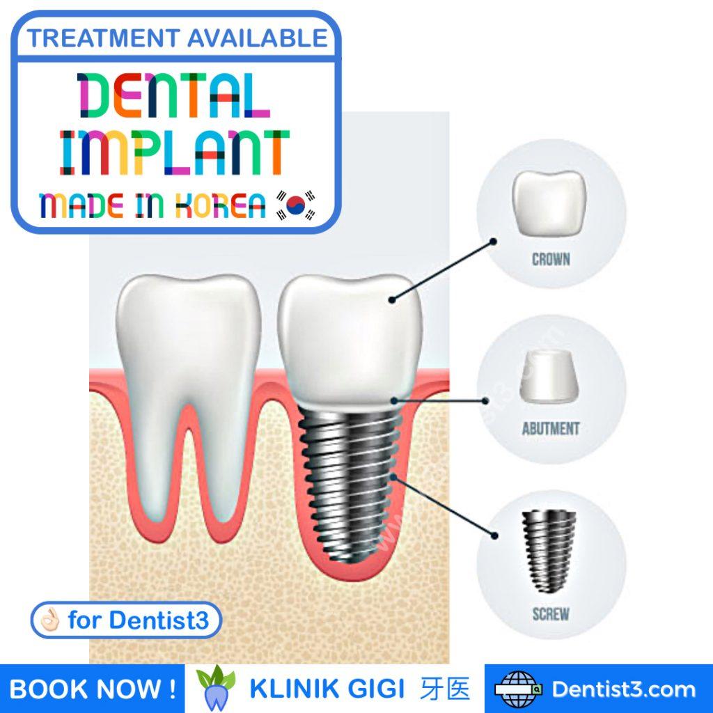 dental implant malaysia